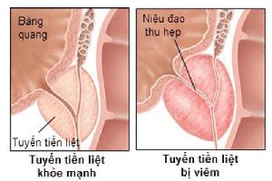 Viêm tuyến tiền liệt là gì? Nguyên nhân triệu chứng cách chữa hiệu quả nhất